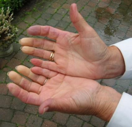 What Dysautonomia Patients Should Know About