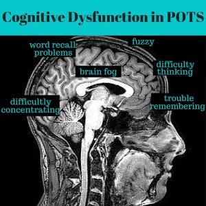 CognitiveDysfunctionInPOTS